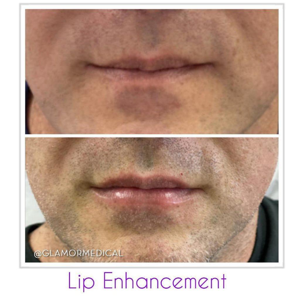Male Lip Enhancement Boca Raton